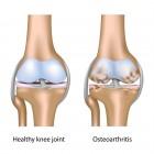退化性關節炎 (Osteoarthritis)