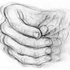 柏金遜綜合症 (Parkinsonism)